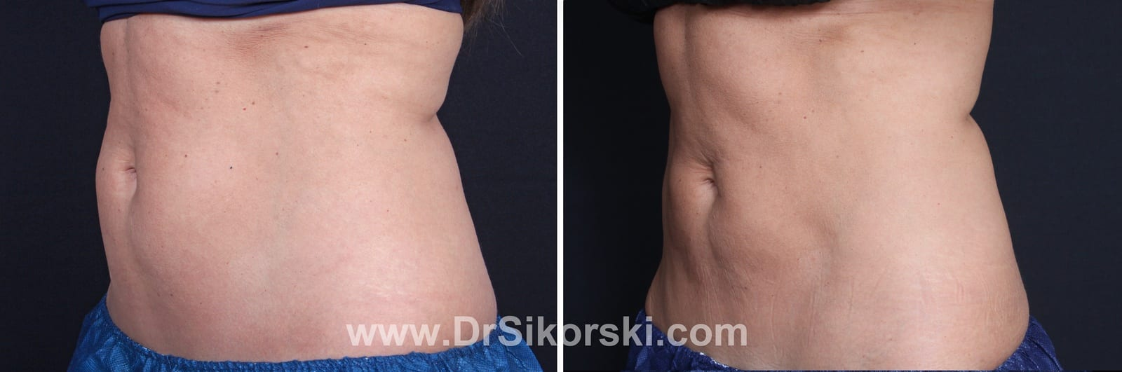 CoolSculpting Mission Viejo Before and After Patient E1