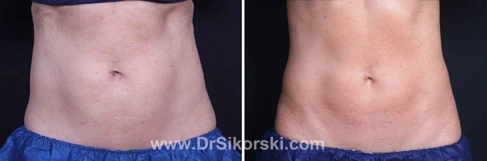 CoolSculpting Before and After Patient E 1