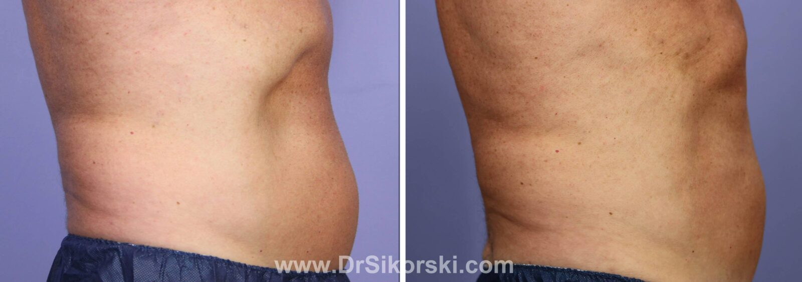 CoolSculpting Mission Viejo Before and After Patient H