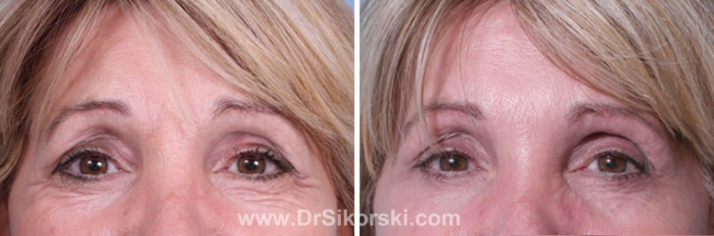 Dysport® Mission Viejo Before and After Patient C