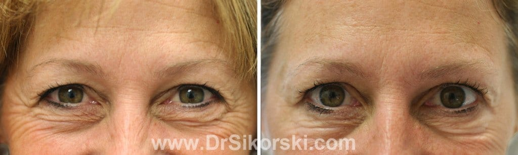 Dysport® Orange County Before and After Patient A