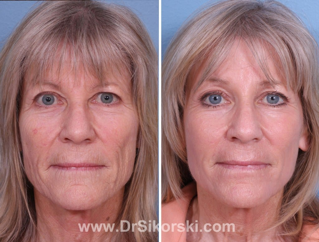 Erbium Laser Mission Viejo Before and After Patient G
