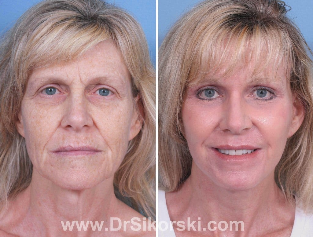 Erbium Laser Orange County Before and After Patient A