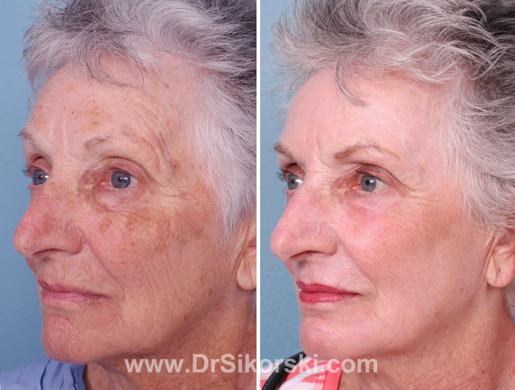 Erbium Laser Orange County Before and After Patient D