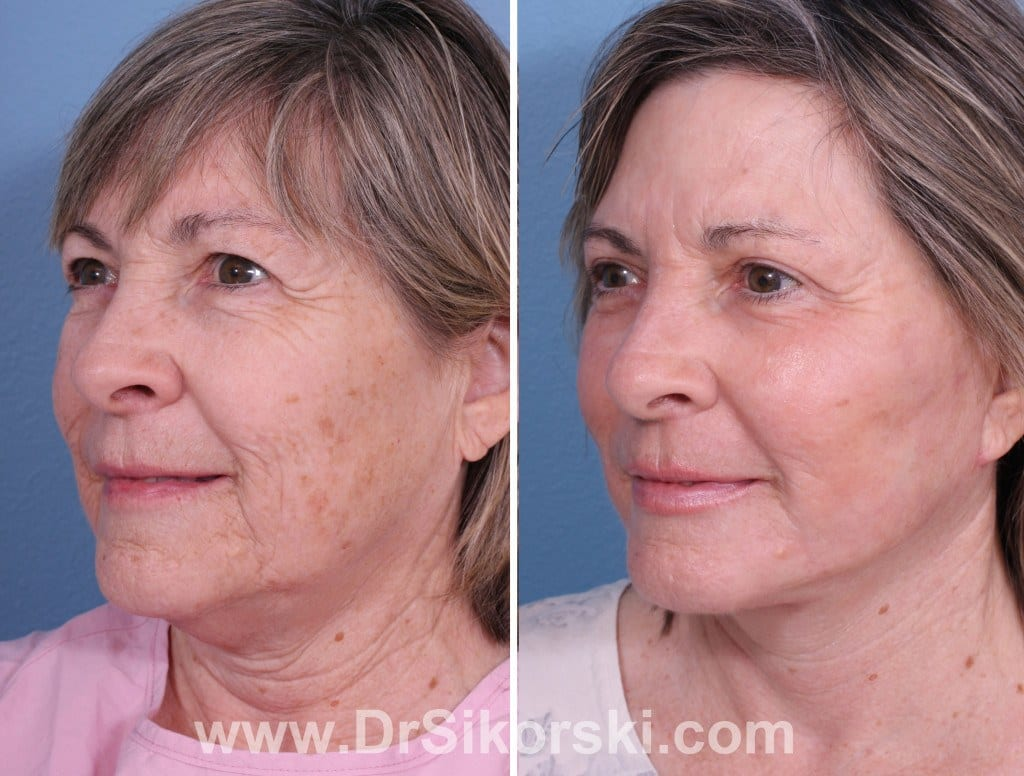 Erbium Laser Orange County Before and After Patient F