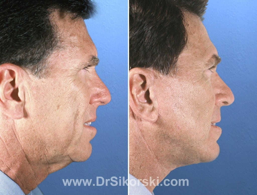 Facelift Mission Viejo Before and After Patient D