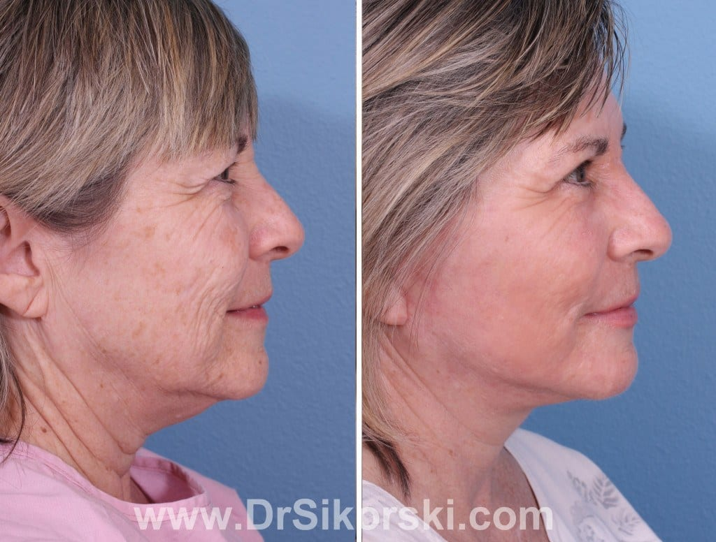 Facelift Mission Viejo Before and After Patient E