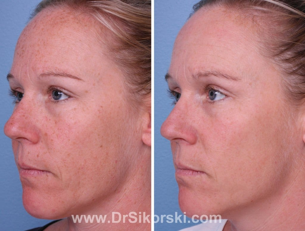Intense Pulsed Light Orange County Before and After Patient A1