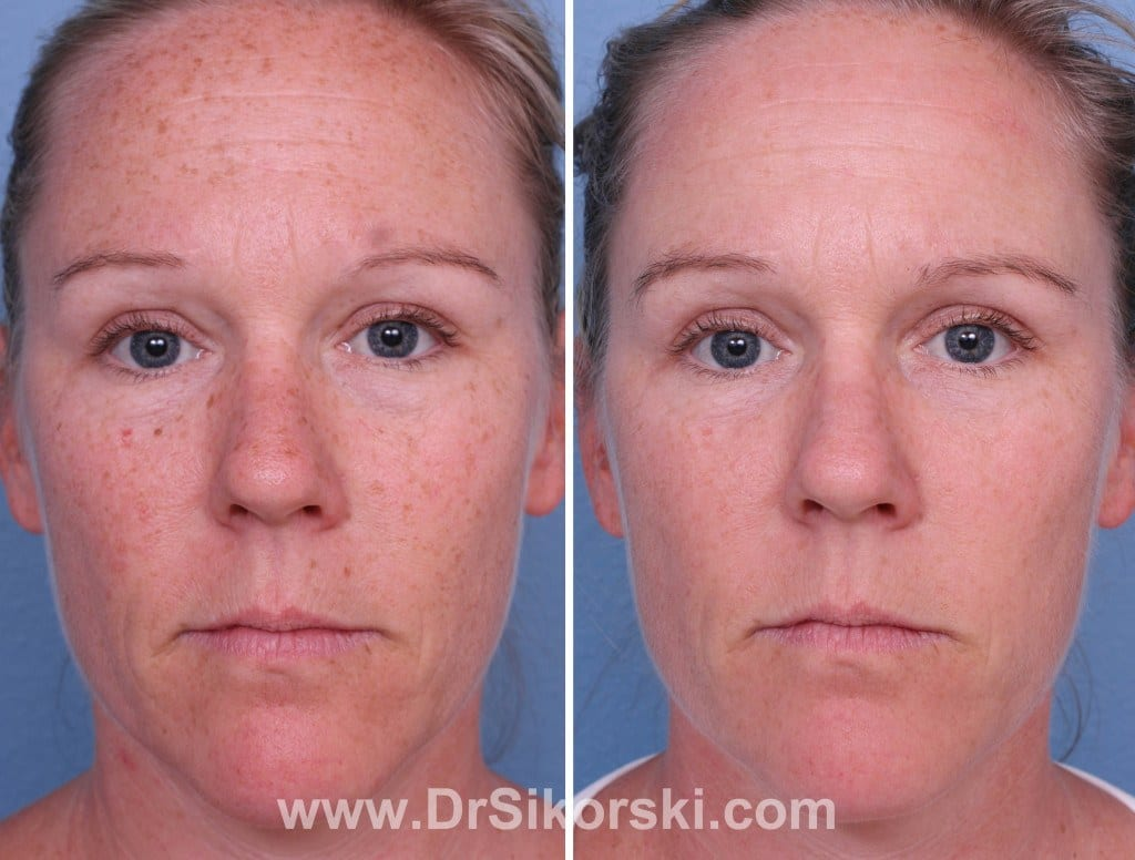 Intense Pulsed Light Orange County Before and After Patient A