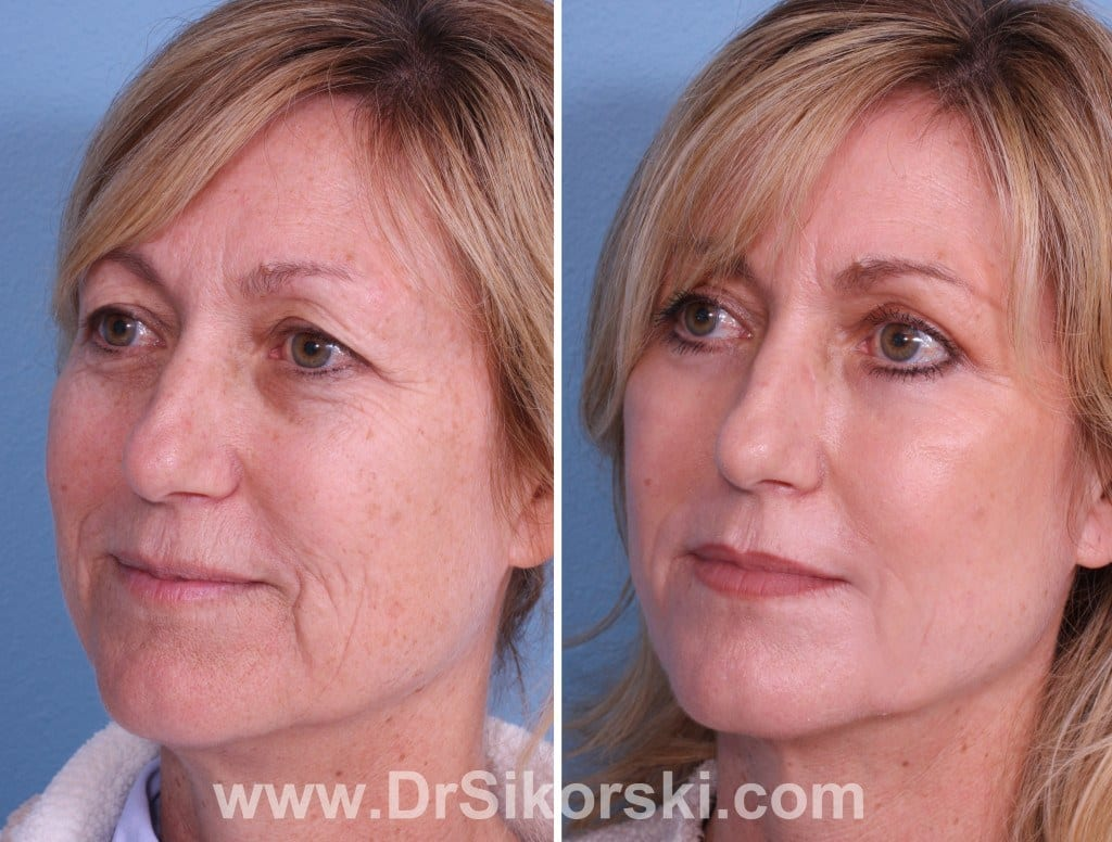 Jowl Lift Orange County Before and After Patient C1