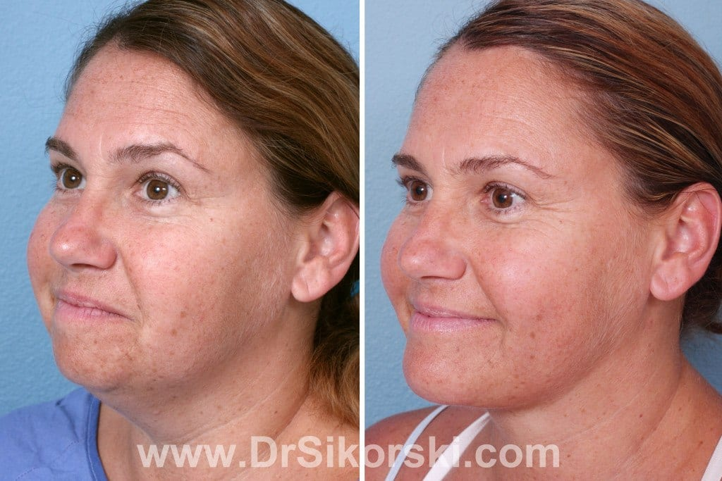 Jowl Lift Orange County Before and After Patient A1