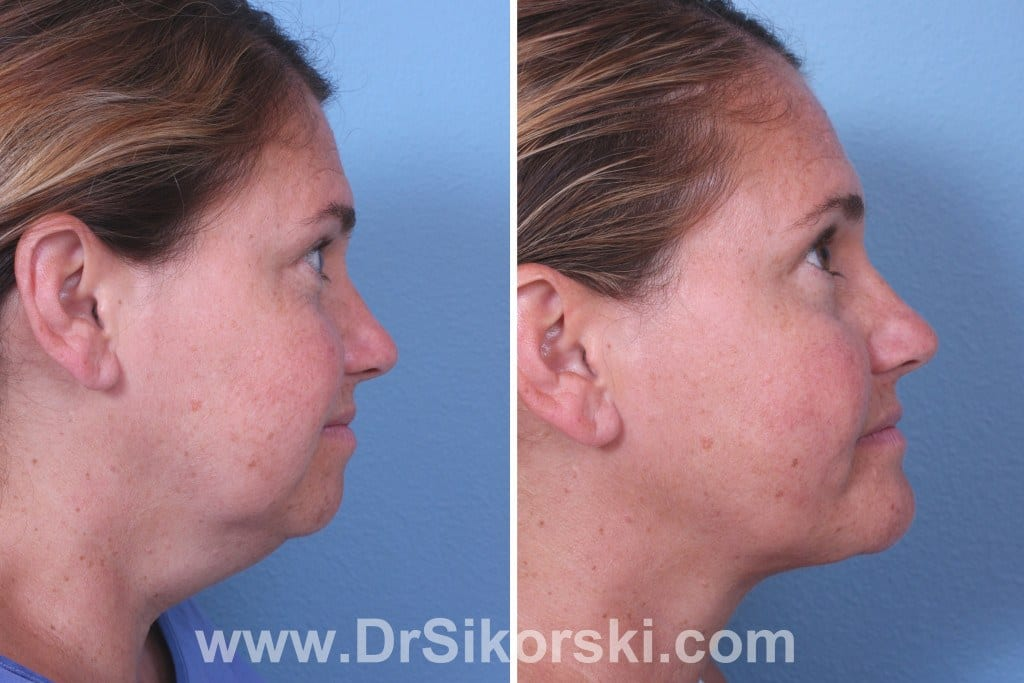 Jowl Lift Orange County Before and After Patient A