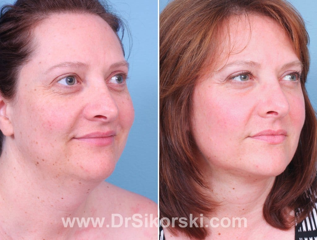 Jowl Lift Orange County Before and After Patient B1