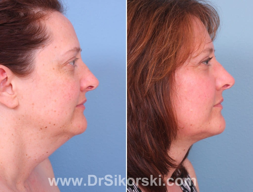 Jowl Lift Orange County Before and After Patient B
