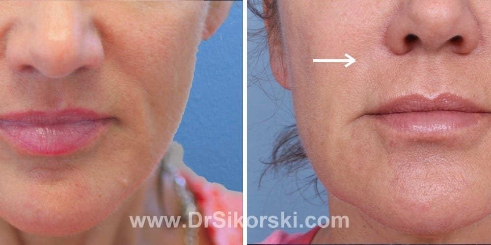 Juvederm Orange County Before and After Patient A