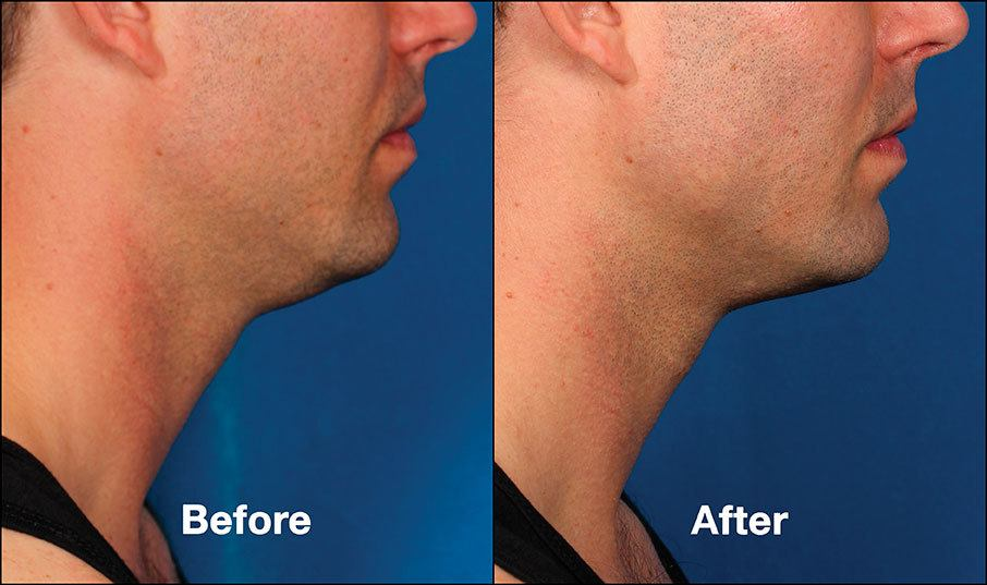 Kybella Mission Viejo Before and After Patient E1