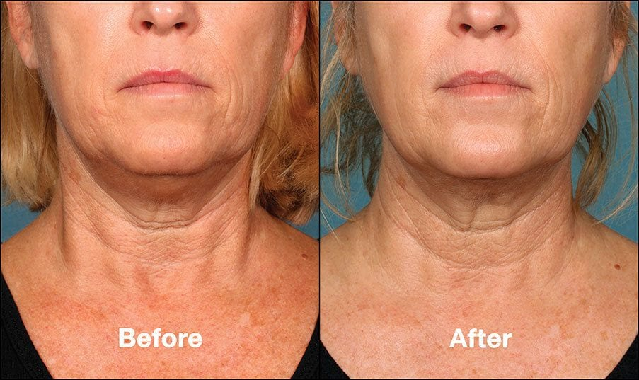 Kybella Orange County Before and After Patient F