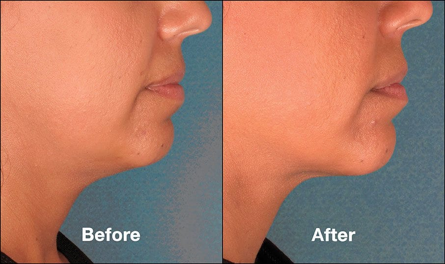 Kybella Orange County Before and After Patient H1
