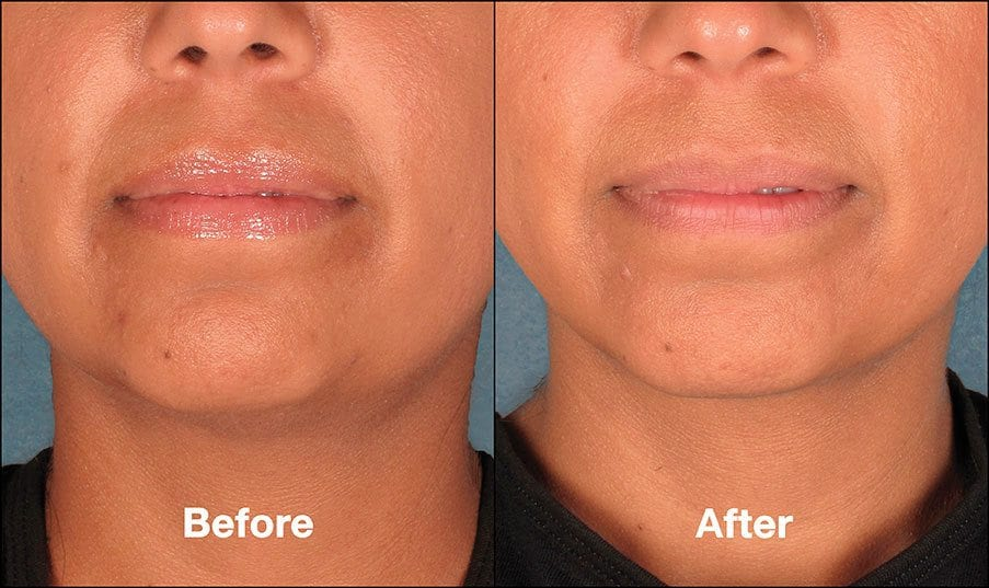 Kybella Mission Viejo Before and After Patient H