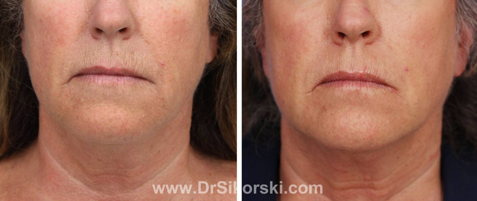 Kybella Mission Viejo Before and After Patient K