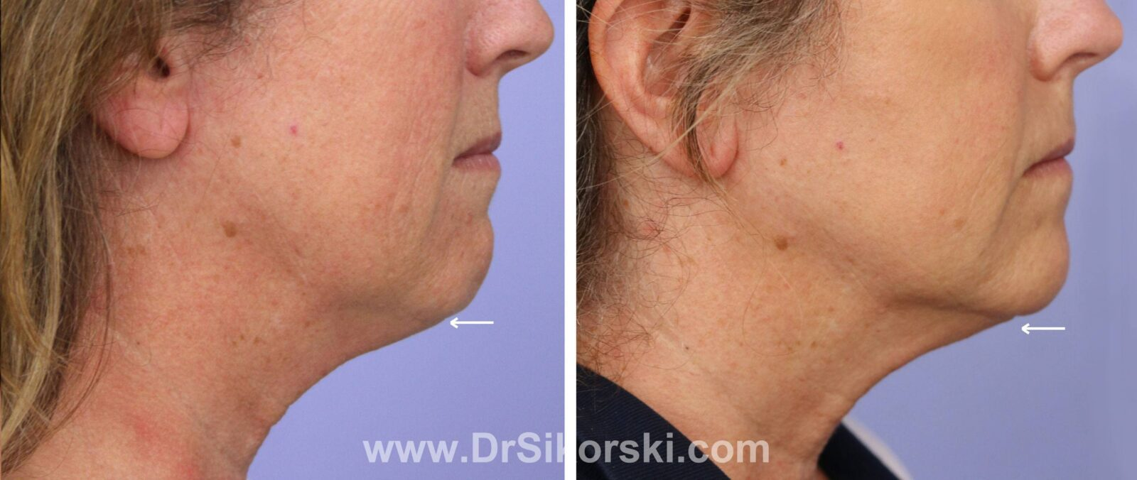 Kybella Mission Viejo Before and After Patient K1