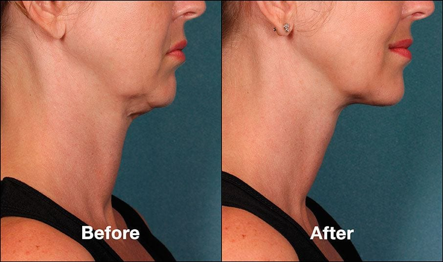 Kybella Orange County Before and After Patient A