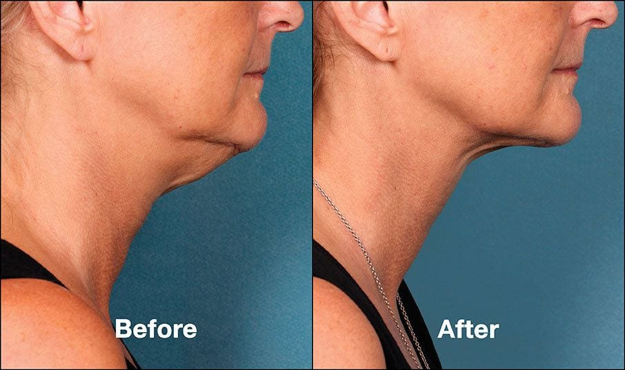 Kybella Orange County Before and After Patient B2