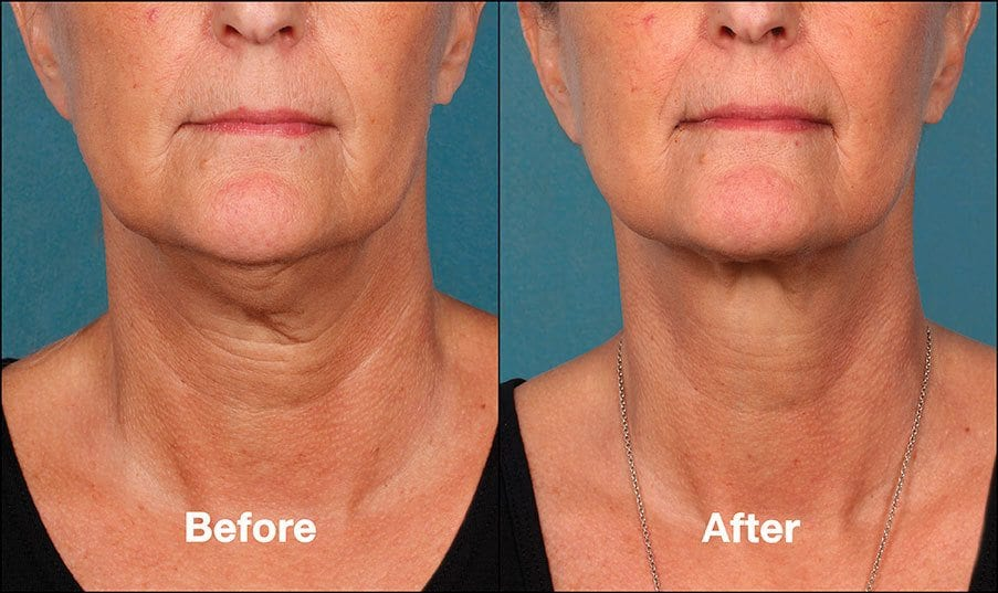 Kybella Orange County Before and After Patient B