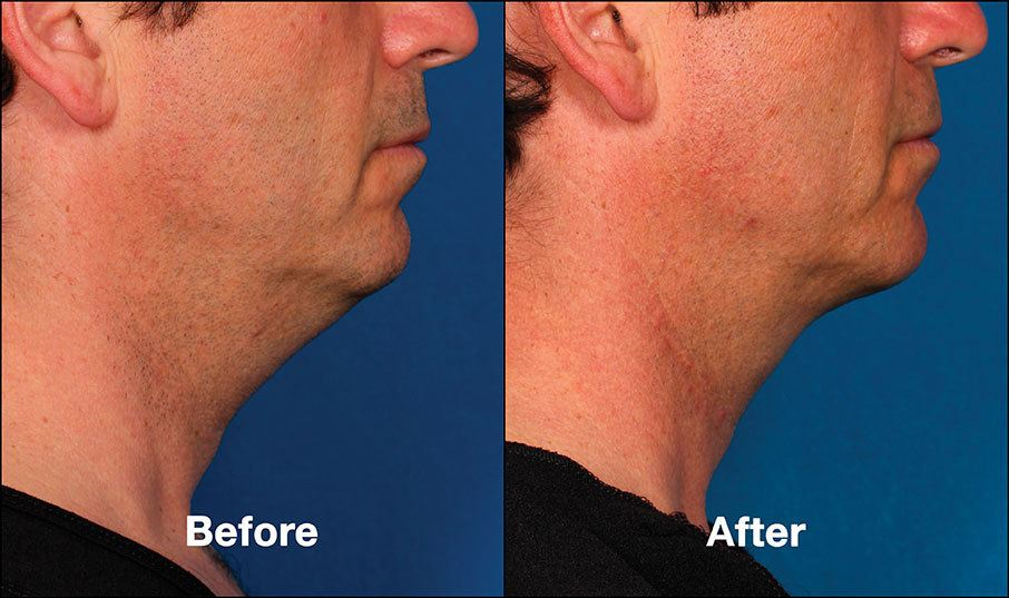 Kybella Orange County Before and After Patient C1
