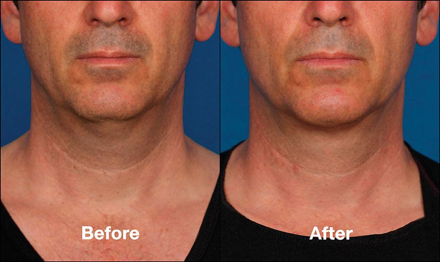 Kybella Orange County Before and After Patient C