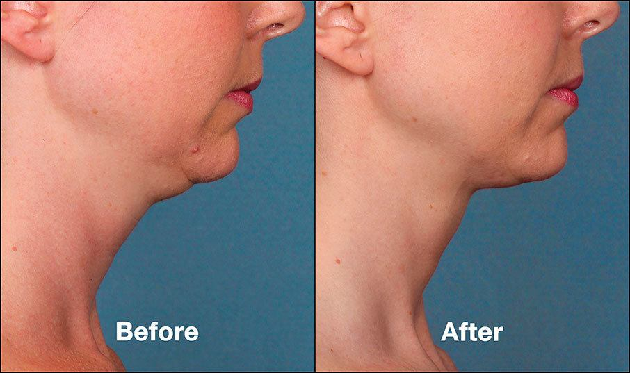Kybella Orange County Before and After Patient D1