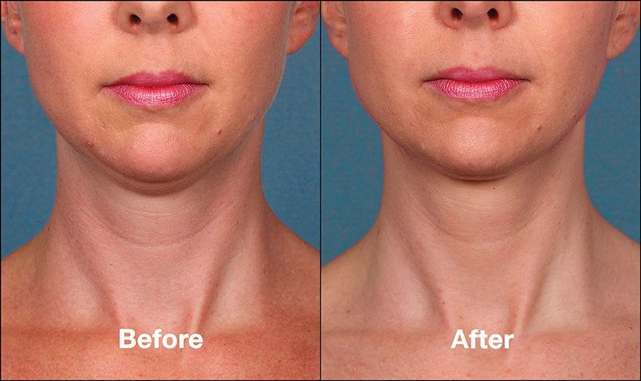Kybella Orange County Before and After Patient D