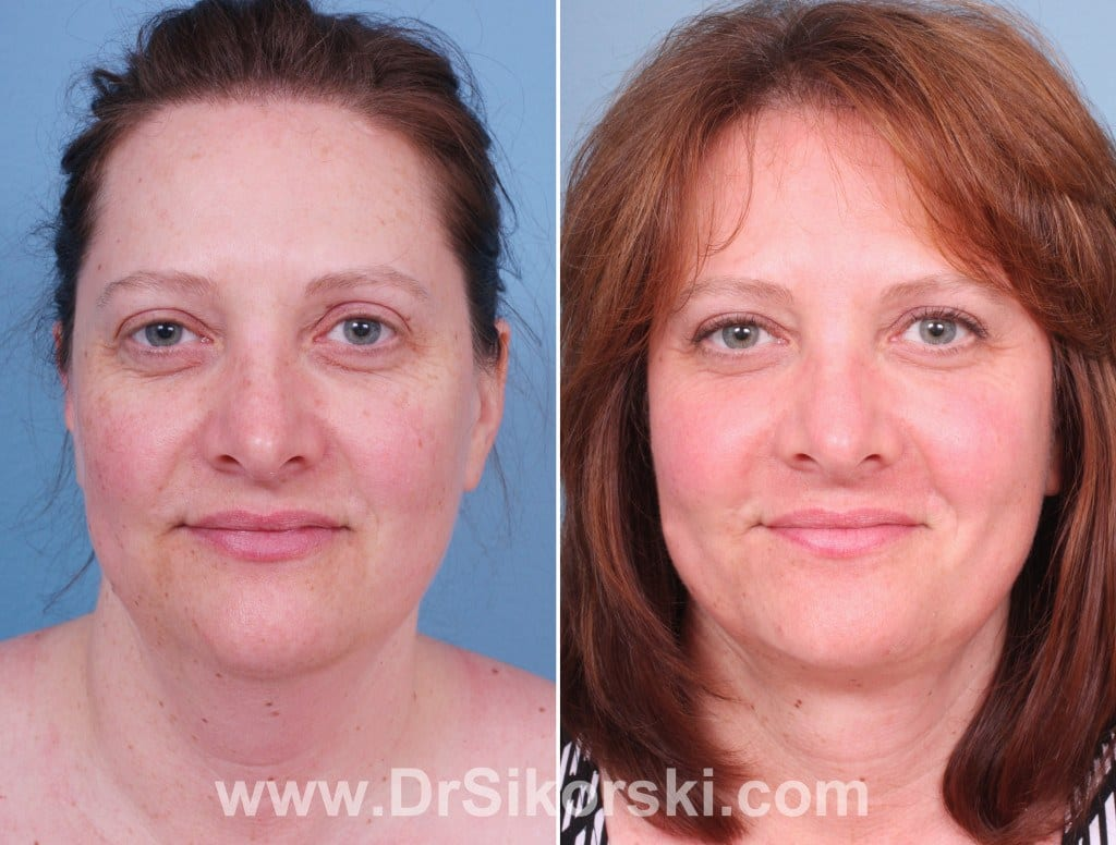 Liposuction Orange County Before and After Patient A