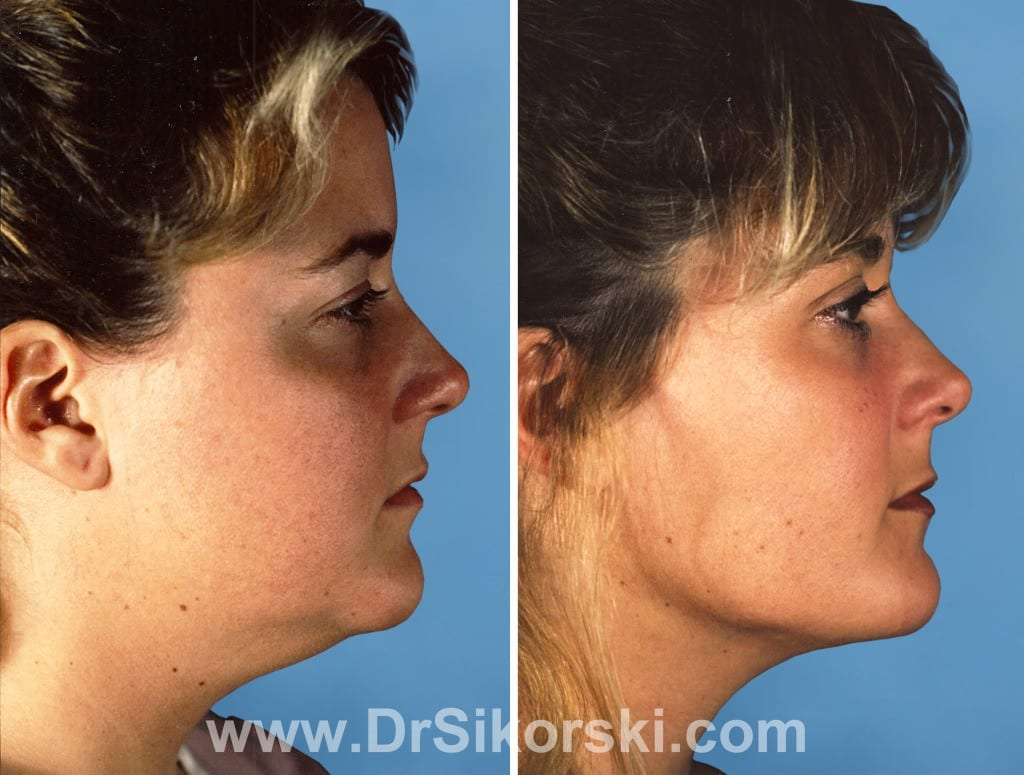 Liposuction Orange County Before and After Patient B