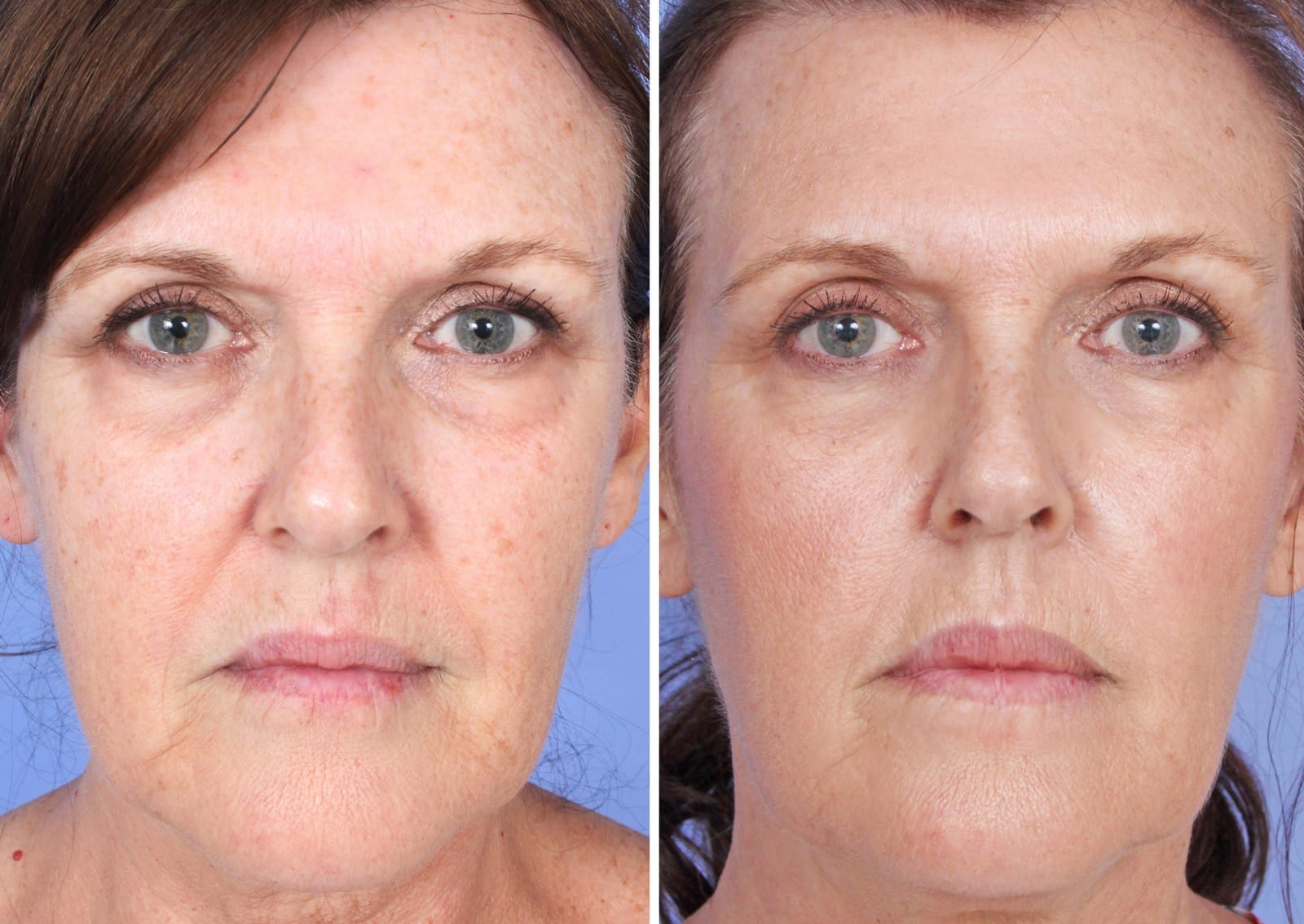 Micro Needling Before and After Orange County Patient A