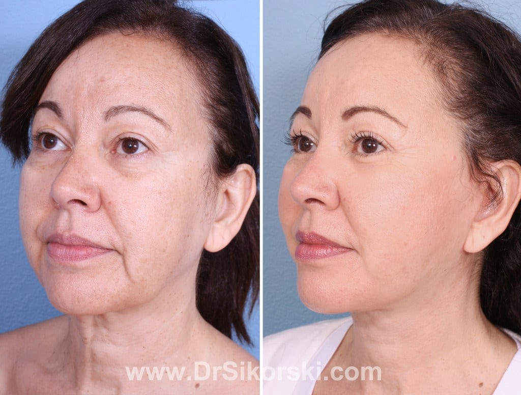 Neck Lift Mission Viejo Before and After Patient D