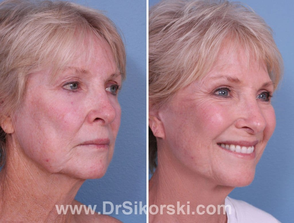Neck Lift Orange County Before and After Patient A