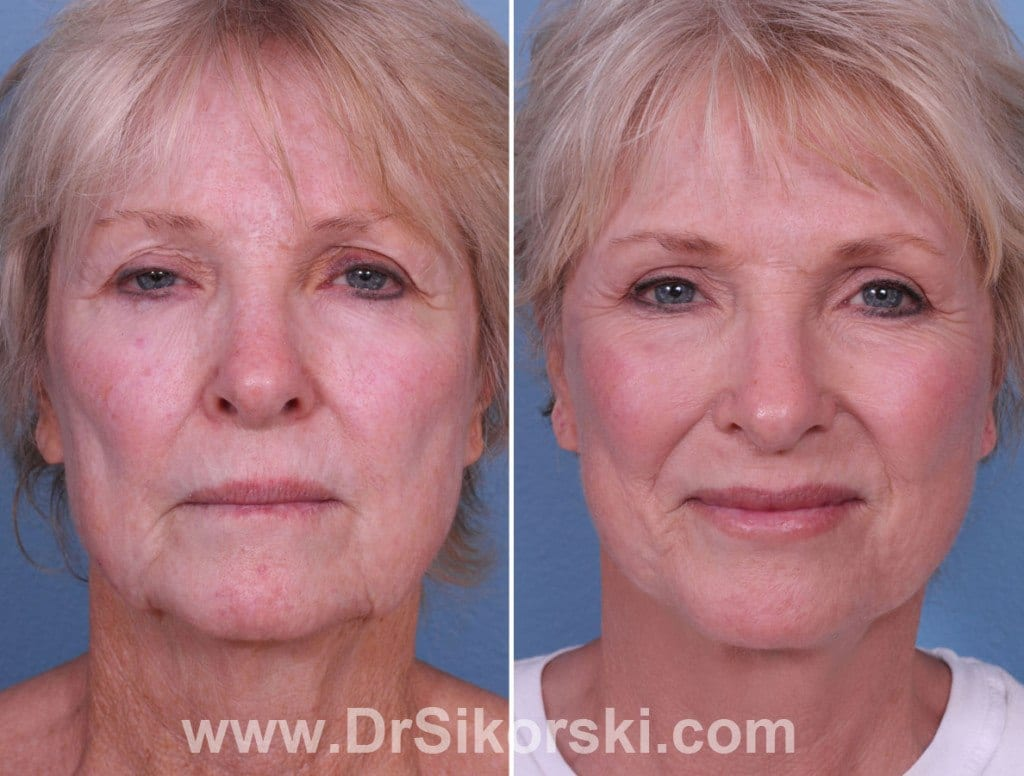 Neck Lift Orange County Before and After Patient A1