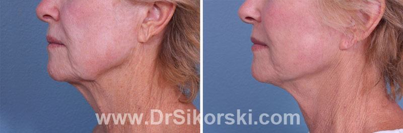 Neck Lift Orange County Before and After Patient A2