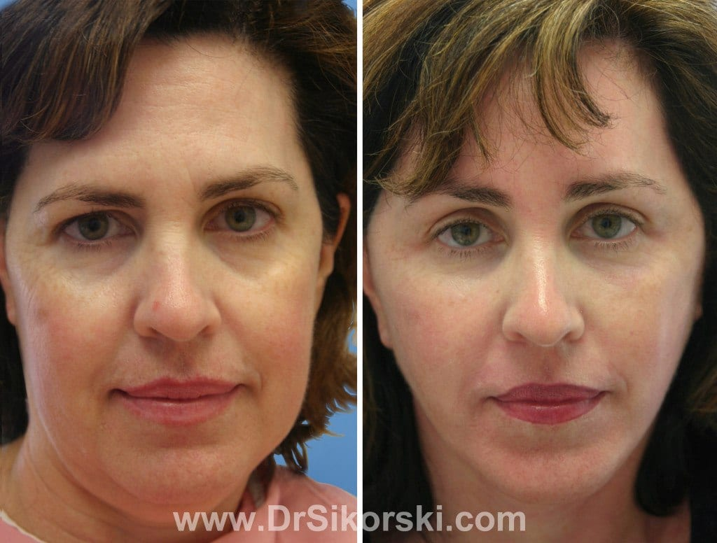 Neck Lift Orange County Before and After Patient B
