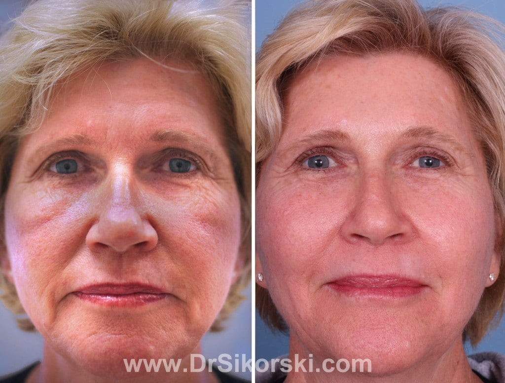 Photo Dynamic Therapy Orange County Before and After Patient A