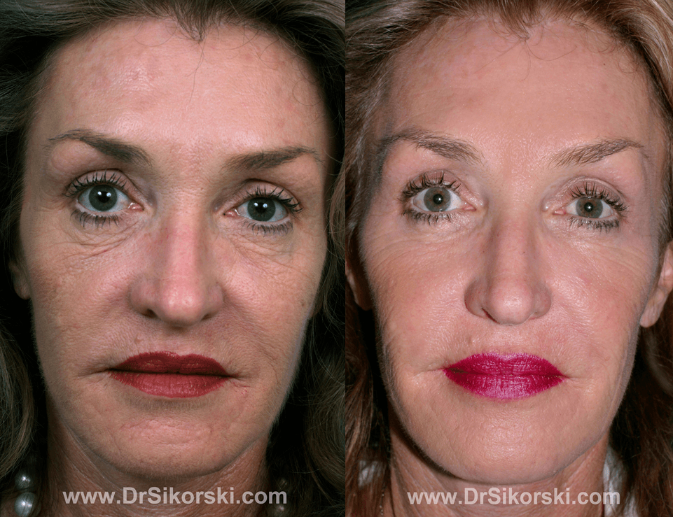 Radiesse Mission Viejo Before and After Patient C