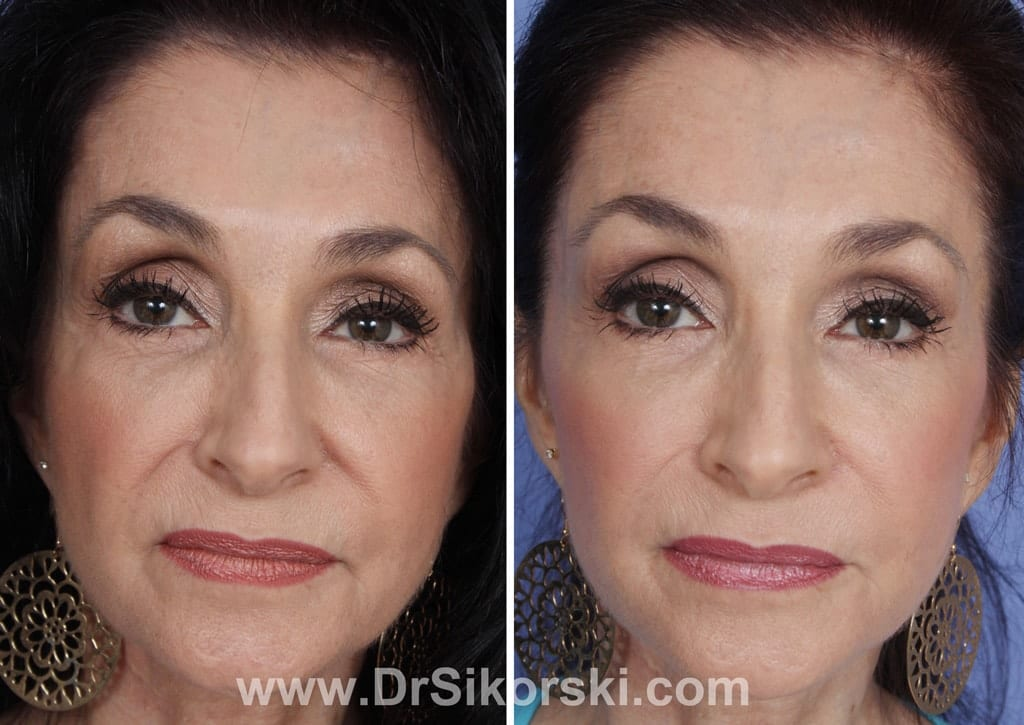 Radiesse Mission Viejo Before and After Patient D