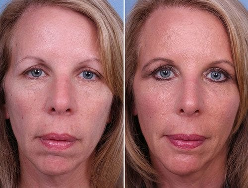 Radiesse Orange County Before and After Patient A