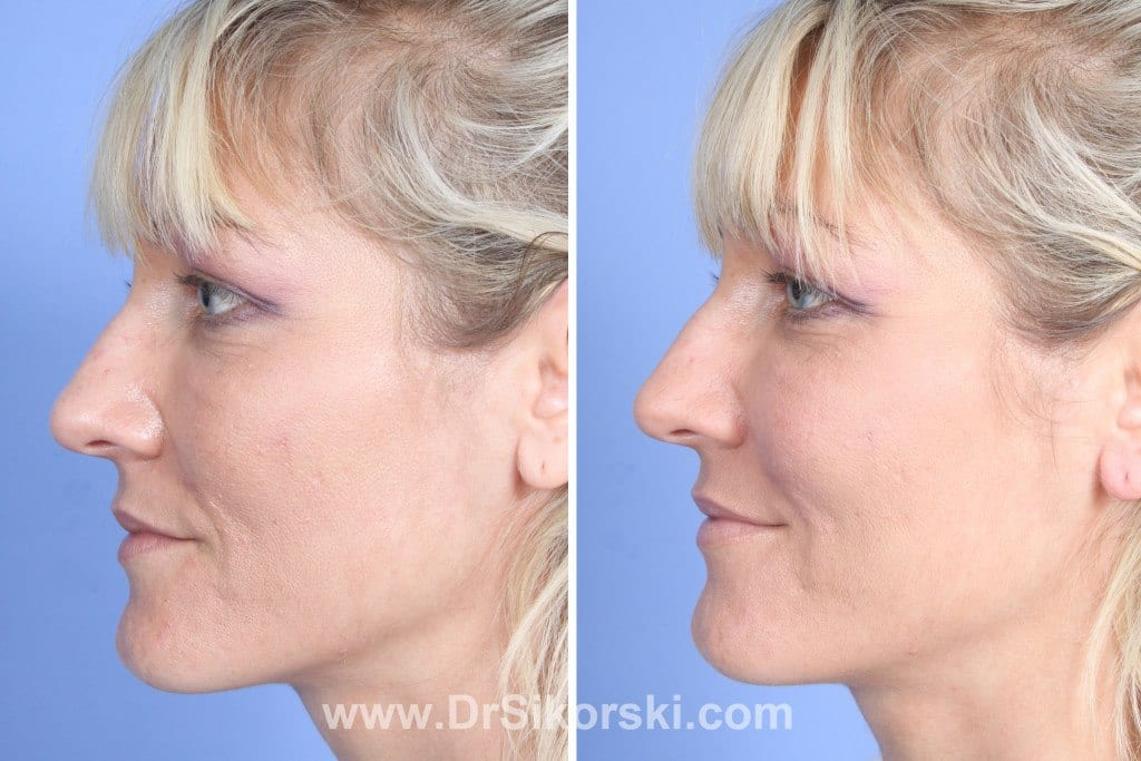 Restylane Lyft Mission Viejo Before and After Patient B1