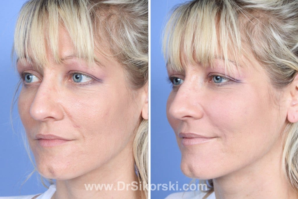 Restylane Lyft Mission Viejo Before and After Patient B