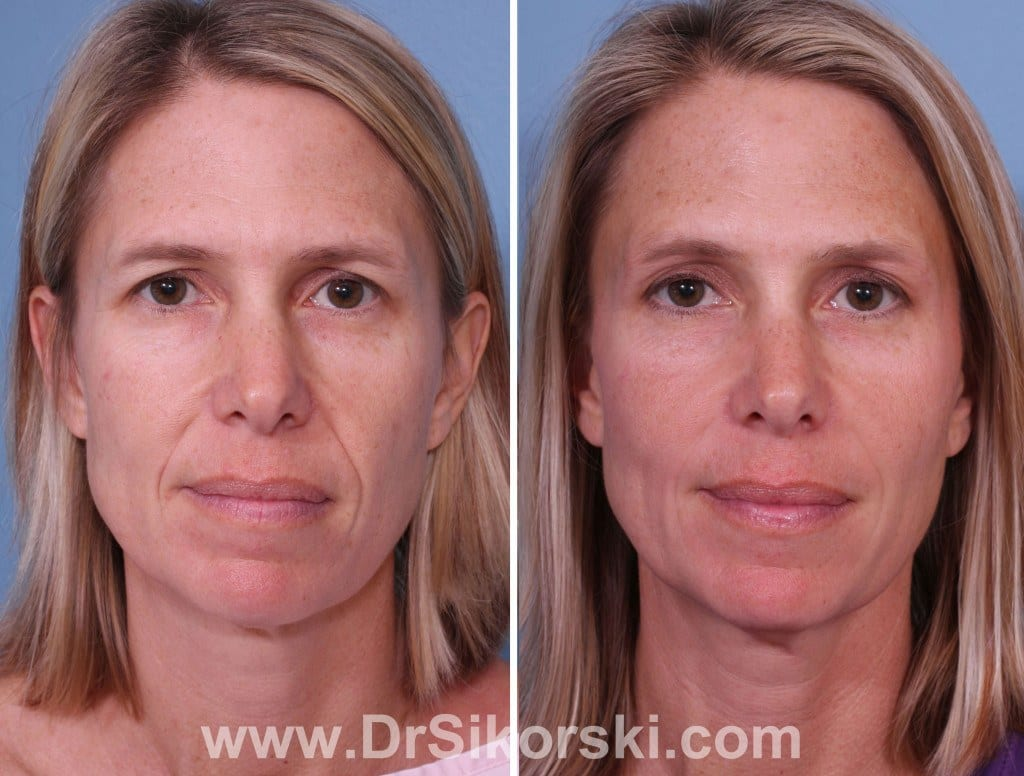 Restylane Lyft Orange County Before and After Patient A
