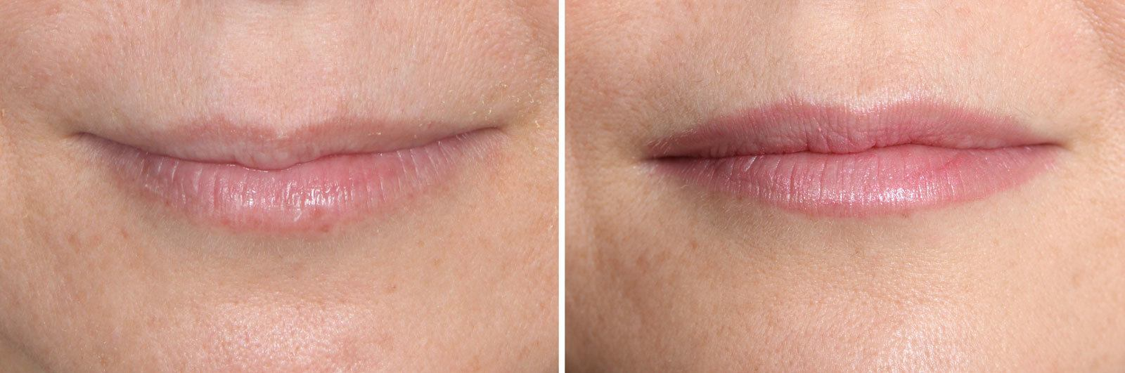 Restylane Mission Viejo Before and After Patient F