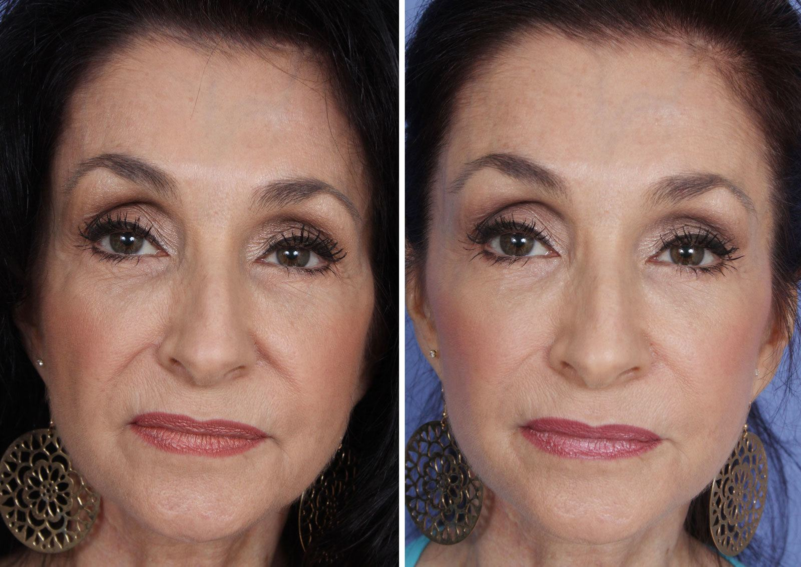 Restylane Mission Viejo Before and After Patient D
