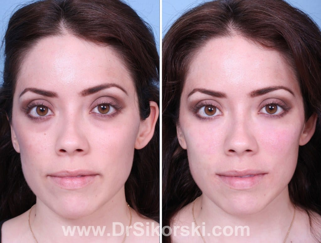 Restylane Orange County Before and After Patient A